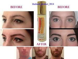 Buy 12 Bottles X Genive Serum Natural Growth Stimulator Lash/eyebrows Thicker, Strong Roll-on New (Herbal Herb Serum: Side Burns, Moustache 10ml)